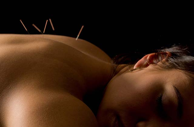 How Can Acupuncture Help Ease Neck And Knee Pain?